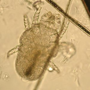 Figure 2. Microscopic image of a Cheyletiella mite. Note the mouthparts that terminate in hooks. Image courtesy of Dr. Sheila Torres at the University of Minnesota.