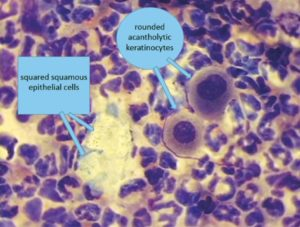FIGURE 3. Acantholytic keratinocytes versus squamous epithelial cells at 100× magnification. Image courtesy of Yu of Guelph Veterinary Dermatology