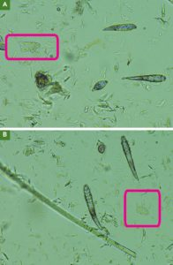 FIGURE 10. Dead Demodex mites (red boxes; 10× magnification) may be more difficult to find during microscopy because they lose contrast with intense light and do not refract. Lower the microscope condenser to minimize overlooking the skeletons.