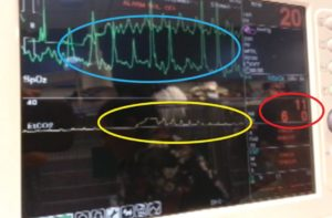 FIGURE 9. The screen of a multiparameter ECG monitor during CPR. The ECG is registering mechanical action exerted by the compressions (blue circle). The capnography (yellow circle) is displaying a breath (larger plateau) and compression-induced ventilation (small spikes). The ETCO2 measurement (red circle) is reading 6 mm Hg and 11 breaths/min.