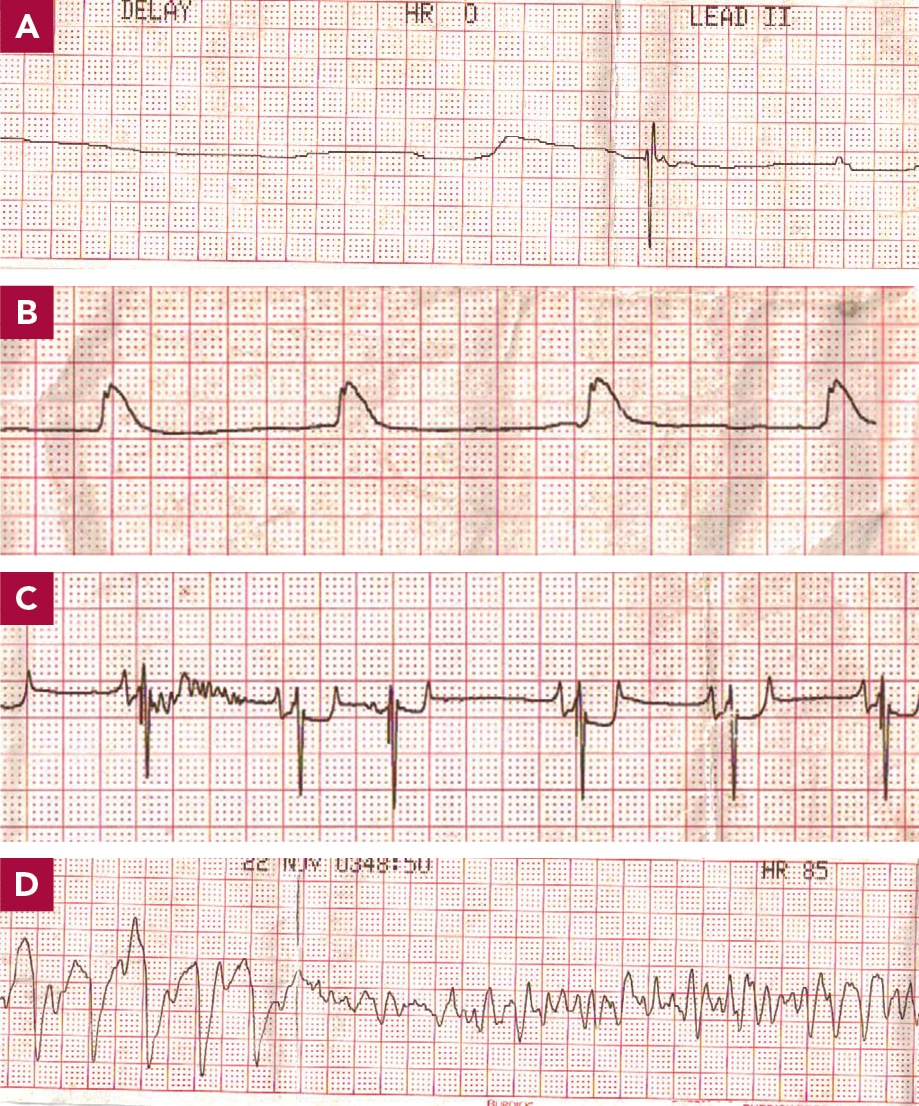 Critical Components to Successful CPR: The RECOVER