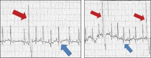 FIGURE 1. Electrocardiogram showing normal PQRST wave (blue arrows) and preventricular contractions (red arrows) caused by doxorubicin.