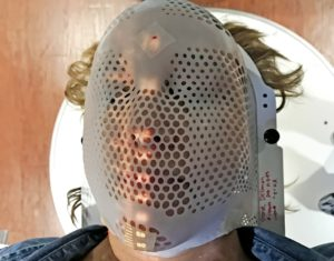 "Deb undergoing radiation therapy in her ""supermask."""