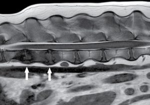FIGURE 3. Sagittal T1-weighted MRI image of the lumbar spine with hypointensity and lysis of the vertebral endplates of T13-L1 and L1-L2 (arrows). ©The Ohio State University