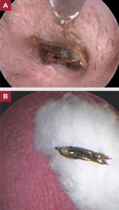 FIGURE 3. (A) Removal of a plant awn from a dog using video otoscopy and forceps. (B) Awn after removal.